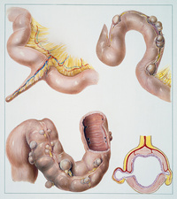 Meckel's diverticulum of the small intestine, illustration