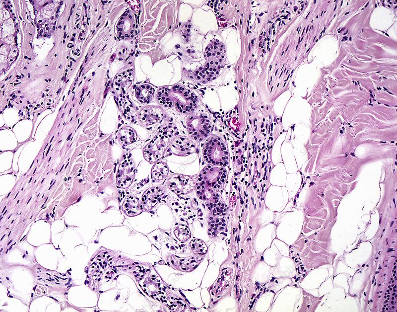 Eccrine Sweat Gland Lm Stock Image C0362179 Science Photo