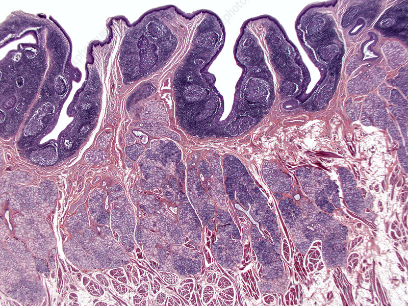 Lingual tonsil, human, LM - Stock Image C036/2324 - Science Photo ...