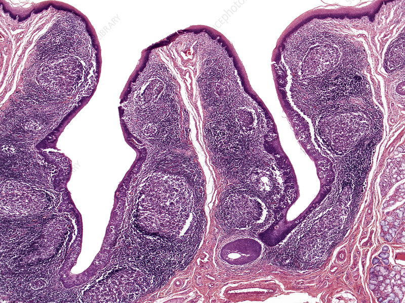 Lingual tonsil, human, LM - Stock Image C036/2325 - Science Photo ...