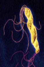 Helicobacter pylori bacterium, LM