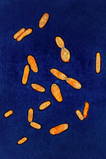 Clostridium tetani, LM