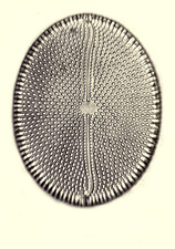 Diatom, From Bori, Hungary, Early Photomicrograph