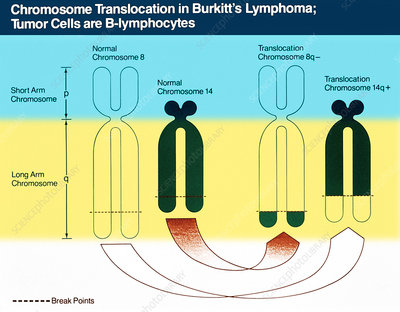 Burkitt's Lymphoma, Chromosome Diagram