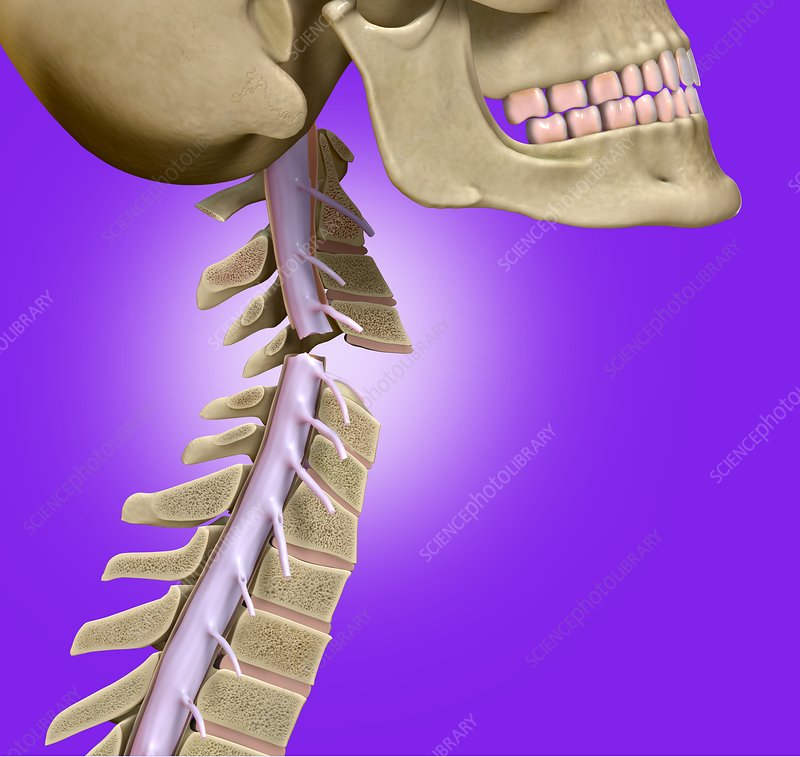 Broken neck, illustration