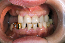 Dental bridge implanted