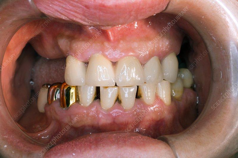 Dental bridge implanted
