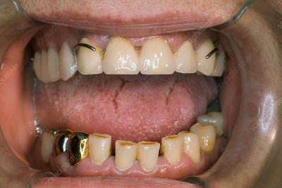 Dental bridge and dentures