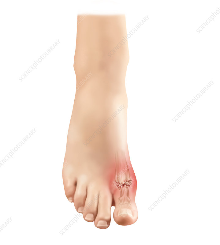 Gout in Foot, Illustration
