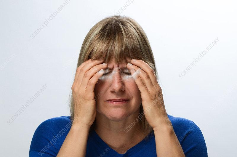 Migraine Headache with Aura