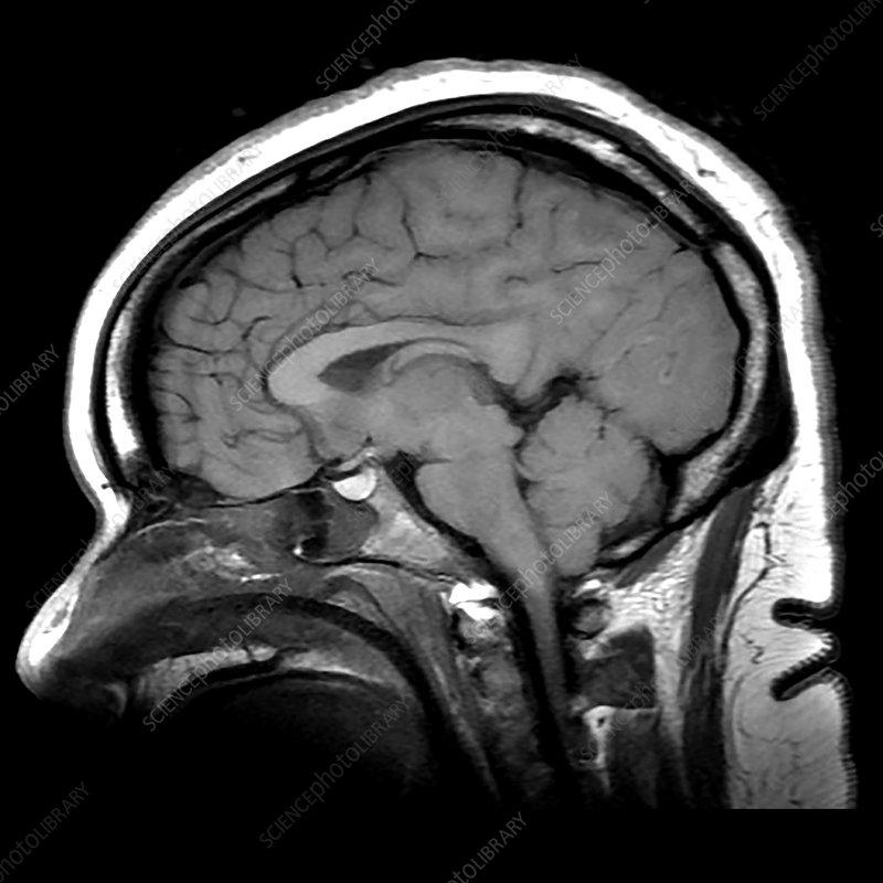 Diffuse Anoxic Injury after Cardiac Arrest, MRI
