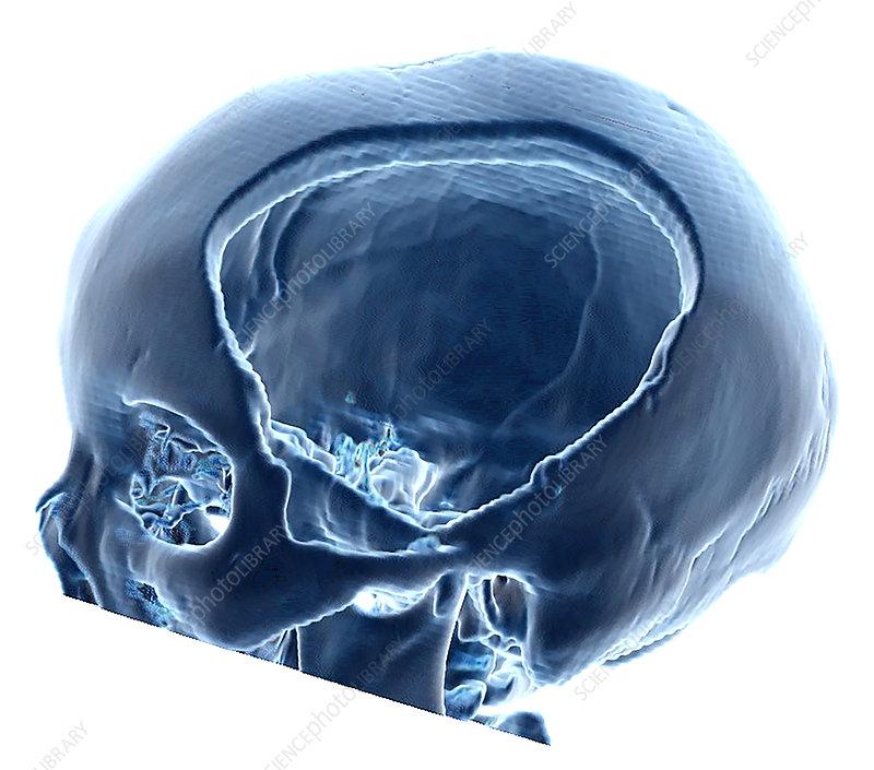 3D CT of Hemicraniectomy
