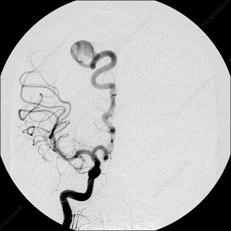 Angiogram of AV Fistula