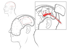 Decompressive Craniectomy, Illustration