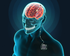 Deep Brain Stimulation, Illustration