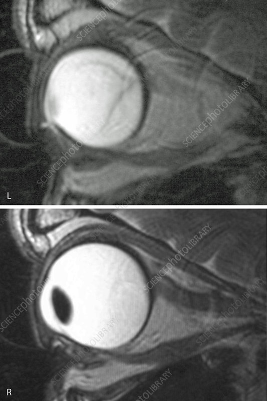 Retinal Detachment, MRI