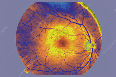 Fundus of the Eye