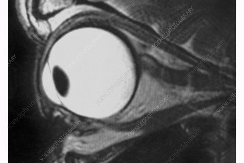 Eye, MRI