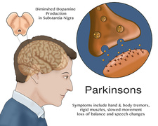 Dopamine & Parkinson's, Illustration