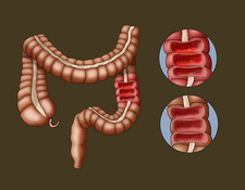 Colitis and the Large Intestine, Illustration