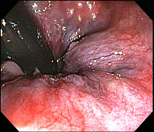 Haemorrhoids, Endoscopic View