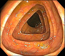 Normal Transverse Colon