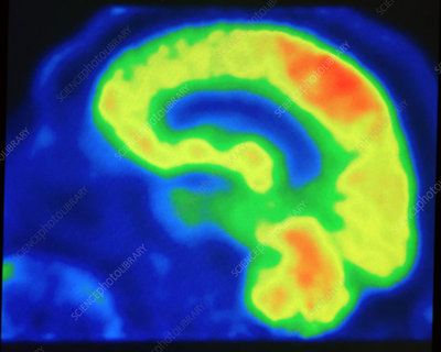 Brain, PET Scan, Normal