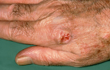 Squamous Cell Carcinoma on Knuckle