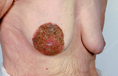 Paget Disease of Breast