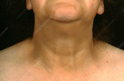 Hypothyroidism, Swollen Neck