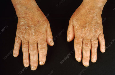 Hypothyroidism, Hands