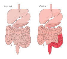 Healthy Digestive System and Colitis