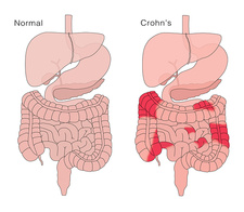 Healthy Digestive System and Crohn's Disease