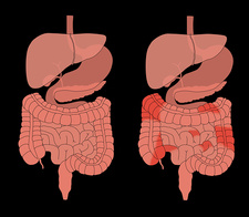 Healthy Digestive System & Crohn's, Comparison