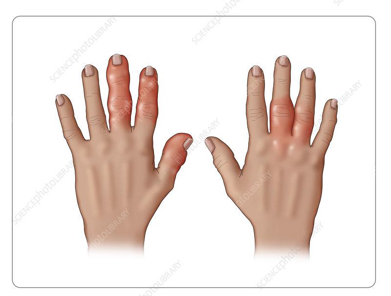 Psoriatic Arthritis Stock Image C036 5706 Science Photo Library