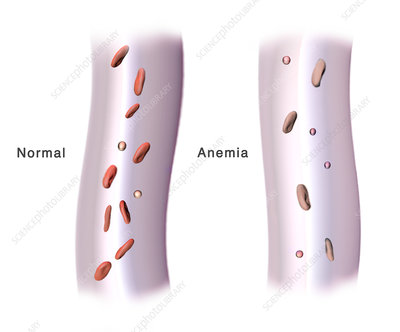 Red Blood Cells and Anaemia, Illustration