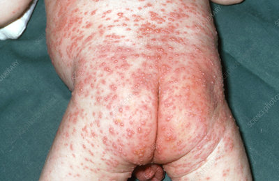 Infant with Chicken Pox