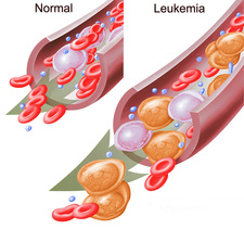 Normal Blood Cells and Leukaemia