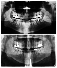 15 Year Mouth Comparison, X-Rays