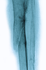 Fracture resulting from osteoporosis, X-ray
