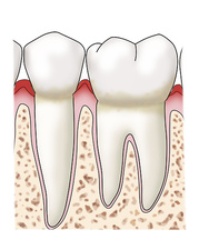 Gingivitis & Plaque, Side View, Illustration