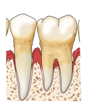 Periodontitis & Tartar, Illustration