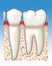 Gingivitis, Illustration