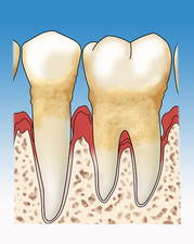 Periodontitis, Illustration