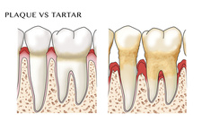 Gingivitis & Periodontitis, Comparison