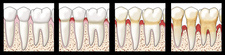 Progression of Gum Disease, Illustration