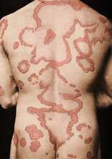 Plaque Psoriasis on Back