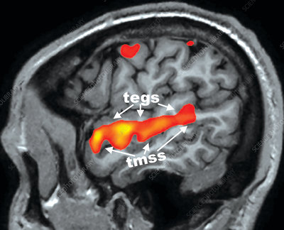 Hearing during Passive Listening, fMRI