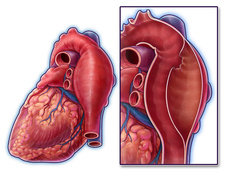 Aortic Dissection, Illustration