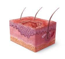 Squamous Cell Carcinoma Illustration